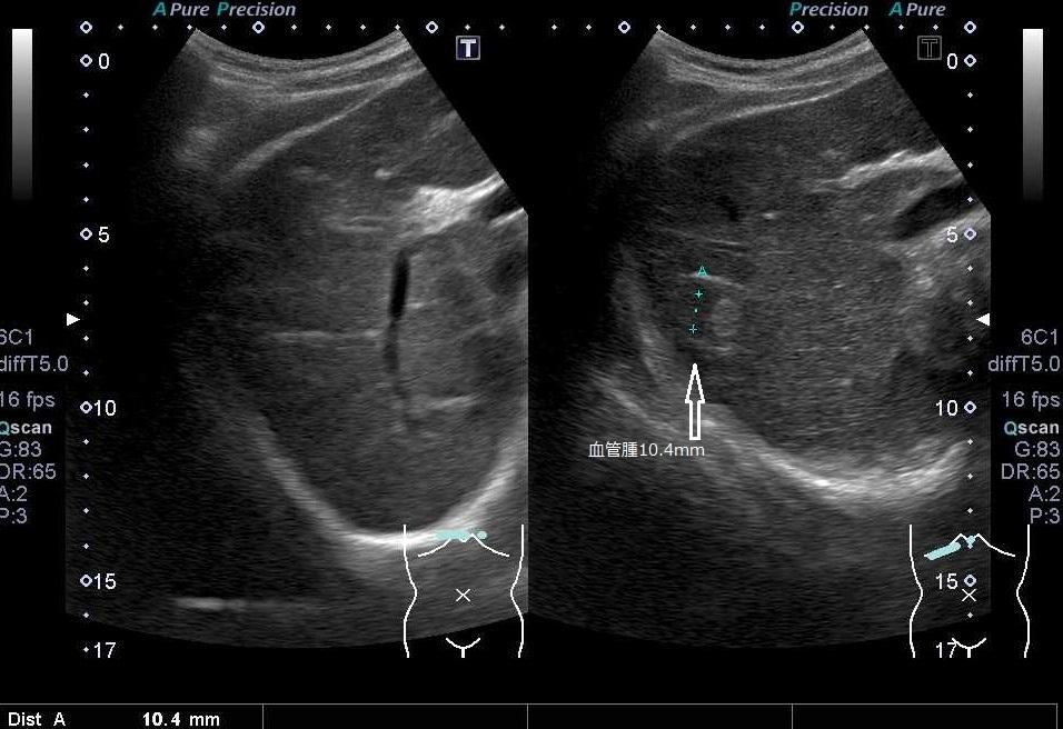 腹部超音波検査(腹部エコー)