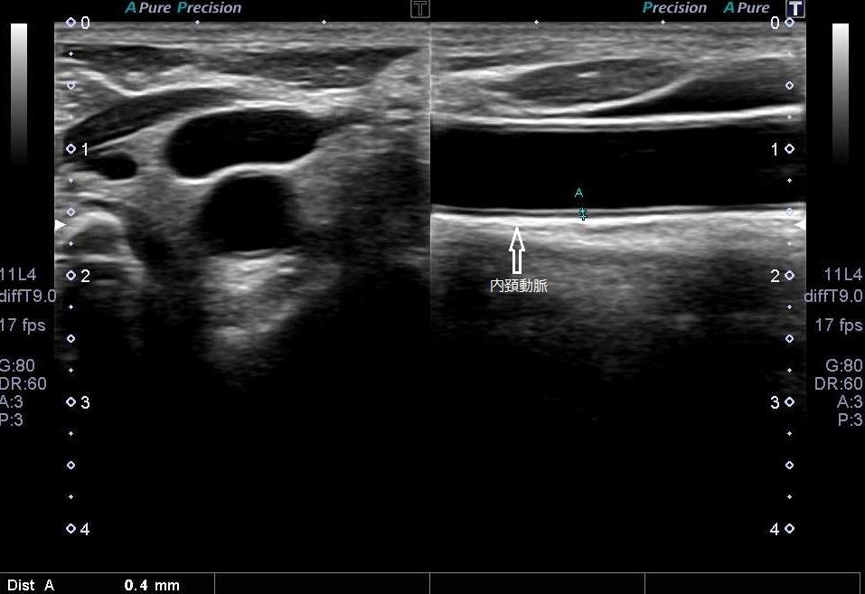 頚部血管超音波検査(頸動脈エコー)