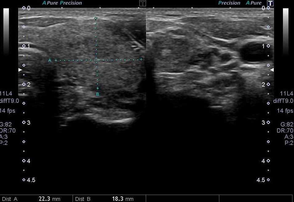 甲状腺超音波検査